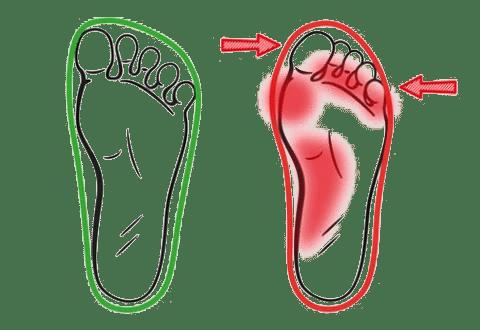 נעליים נוחות או נכות?